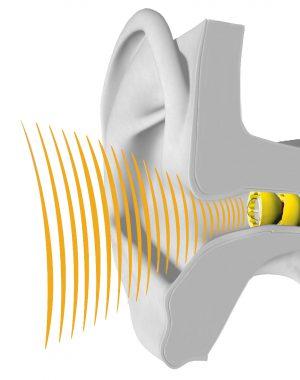 Lyric hearing aid in ear